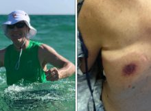 Man dies 48-hrs after contracting flesh-eating bacteria in Florida – daughter issues warning to all
