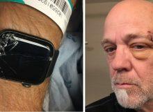 Apple Watch calls 911 after bike crash leaves man unconscious