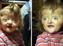 Two-year-old girl banned from nursery because deformed skull 'would scare other children'