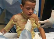 12-year-old boy left with serious burns after friends set him on fire – mom issues warning over new trend