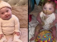 Down syndrome baby mocked by trolls for eating cake on her 1st birthday – let's show her our support