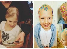 Little girl with alopecia permanently loses hair, but finds beauty in baldness by decorating her head