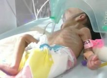 Newborn weighing 3lbs found buried alive in clay pot by grieving couple – she needs all our prayers