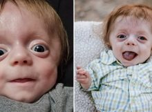 Newborn with Brittle Bone Disease diagnosis defies all odds to become family's 'fighter' – show him some love!