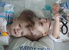 'Nothing short of a miracle': Conjoined twins separated after 27-hour surgery, growing stronger despite all odds