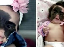 """Strangers mock 6-month-old baby with """"Batman"""" birthmark – parents put them in their place"""
