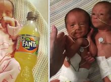 Update: Premature twins born size of a soda bottle go home after 1,000 hours in intensive care