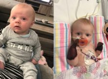 Baby loses both hands after developing rash on holiday – doctors have no idea how to treat his rare condition