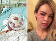 Her ex raped her and threw acid in her face – now she heals from life-wrecking trauma and needs our support