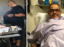 Man teased for 'Beer Belly' and turned away by physician actually has 77-pound cancerous tumor