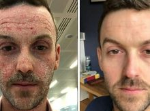 Man with eczema posts incredible transformation after ditching steroid medication