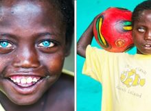 Meet the Ethiopian boy whose rare striking blue eyes make him wholly unique