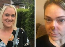 Mom sees doctor for 'harmless' spot on her nose, then told it's flesh-eating cancer