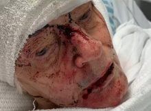 Police hunt for thug who bashed 84-year-old grandma in her retirement home