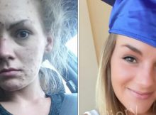 Recovering meth addict posts before and after photos after achieving her diploma – let's hear it for her