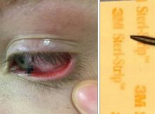 """Girl sees pencil thrown across school classroom, then friend says """"I think there's something in your eye"""""""