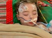 4-year-old suffers brain damage after contracting the flu
