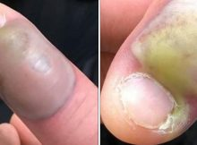 Woman hospitalized after contracting deadly infection from biting her nails