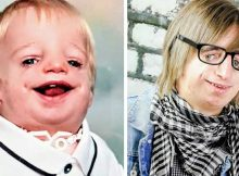 Boy born with no ears and no cheekbones bullied into tears at school, has the last laugh
