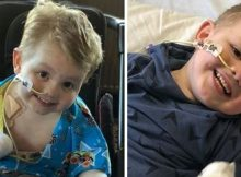 Mom thought son, 3, had kindergarten bug, but now he's lost both his legs