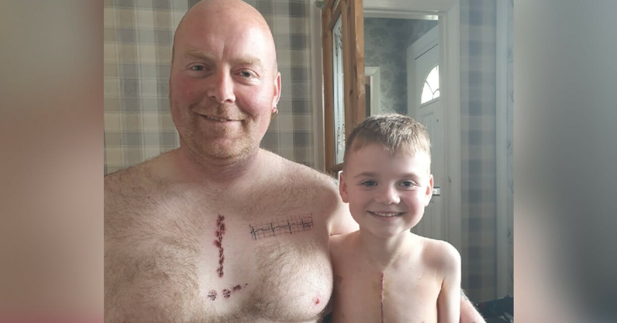 Dad gets tattoo to match 6-year-old son's scar from life-saving surgery