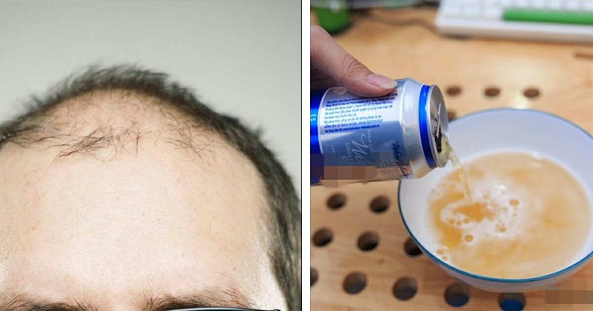 Shampooing with a can of beer helps with hair loss and getting rid of dandruff