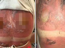 Teen issues stark warning after photos of horrific sunburn go viral – and she wore sunscreen