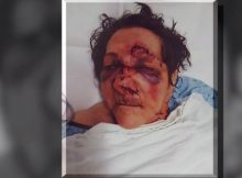 86-year-old allegedly assaulted at New Jersey nursing home – facility said she fell