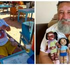 Grandfather with vitiligo crochets dolls to cheer up kids with the skin condition