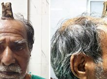"""Man ignores pain in his head after bumping it, only to start growing """"devil horn"""""""
