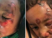 "4-year-old with cerebral palsy left with painful burns after 'fall' – keeps saying ""naughty teacher"""