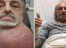 81-year-old has soccer ball-sized tumor removed from neck after months of being turned away by doctors