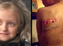 Brave 4-year-old girl beats cancer but bullies mock her scars, fed-up mom confronts her tormentors
