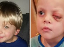 4-year-old boy has eye removed over Christmas after mom finds rare cancer in photo