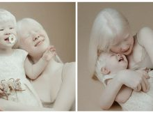 Albino sisters born 12 years apart become modeling sensations