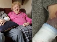 102-year-old veteran fights off home invader who attacked him at front door, suffers cuts and bad bruises