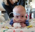 6-month-old survives three open heart surgeries only to die from mold found in operating room